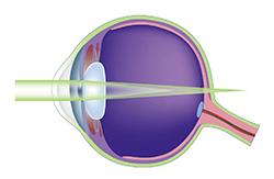LASIK astigmatism