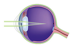 LASIK myopia